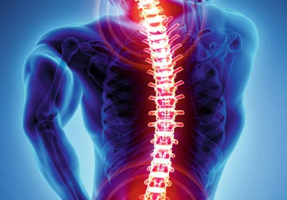 Wirbelsäule Rückenschmerzen